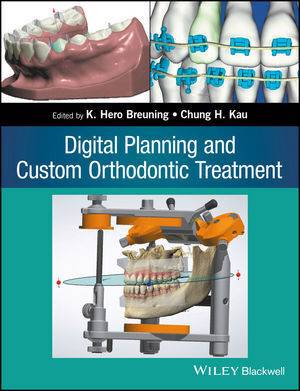 Digital Planning and Custom Orthodontic Treatment