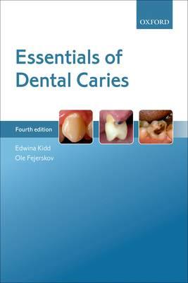 Essentials of Dental Caries